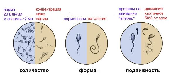 Результаты спермограммы для донора спермы