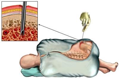Как происходит пересадка костного мозга