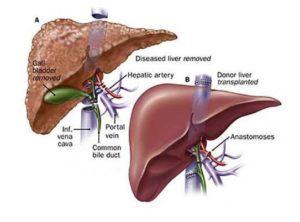 Как происходит пересадка